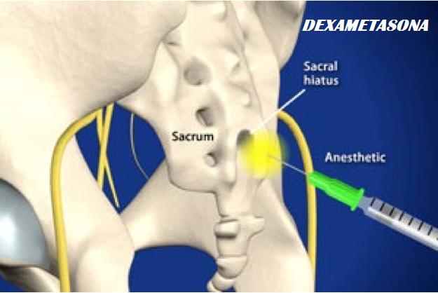 Comparación de la dexametasona caudal vs endovenosa como coadyuvantes para el bloqueo epidural caudal: un ensayo aleatorio doble ciego controlado